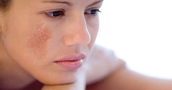 Tác dụng phụ của thuốc có thể khiến da bị nám
