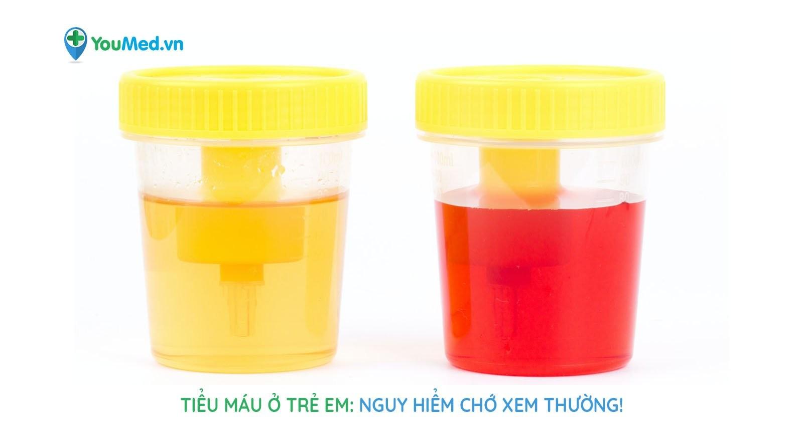 Tiểu máu ở trẻ em: Nguy hiểm chớ xem thường!