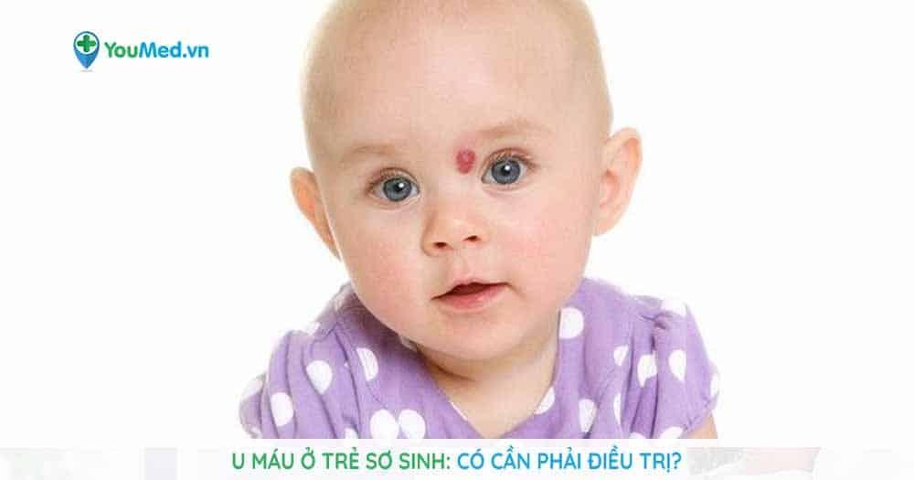 U máu trẻ sơ sinh có cần điều trị?