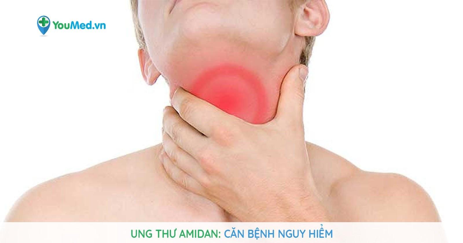 Ung thư amidan: Căn bệnh nguy hiểm!