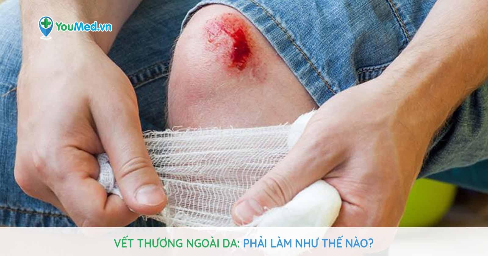 Vết thương ngoài da: Phải làm như thế nào?