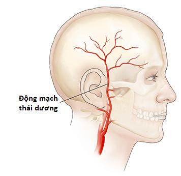 viêm động mạch thái dương