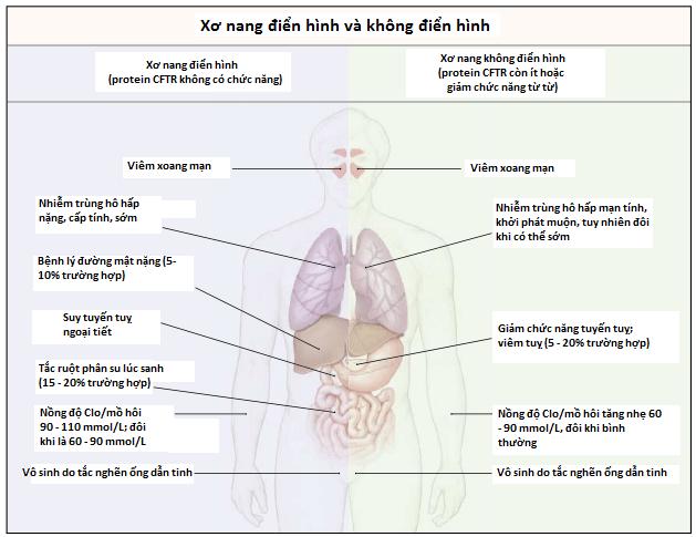 Bảng phân biệt xơ nang điển hình và không điển hình
