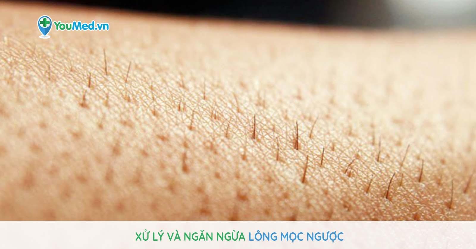 Xử lý và ngăn ngừa bệnh lông mọc ngược thế nào?