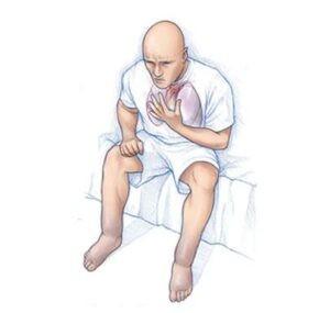 Bệnh cơ tim giãn nở