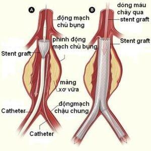 Can thiệp nội mạch phình động mạch chủ