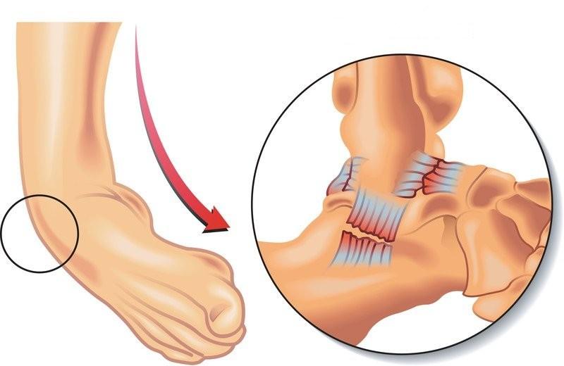 Nguy cơ bị trật mắt cá chân lớn nhất trong các hoạt động liên quan đến chuyển động sang bên.