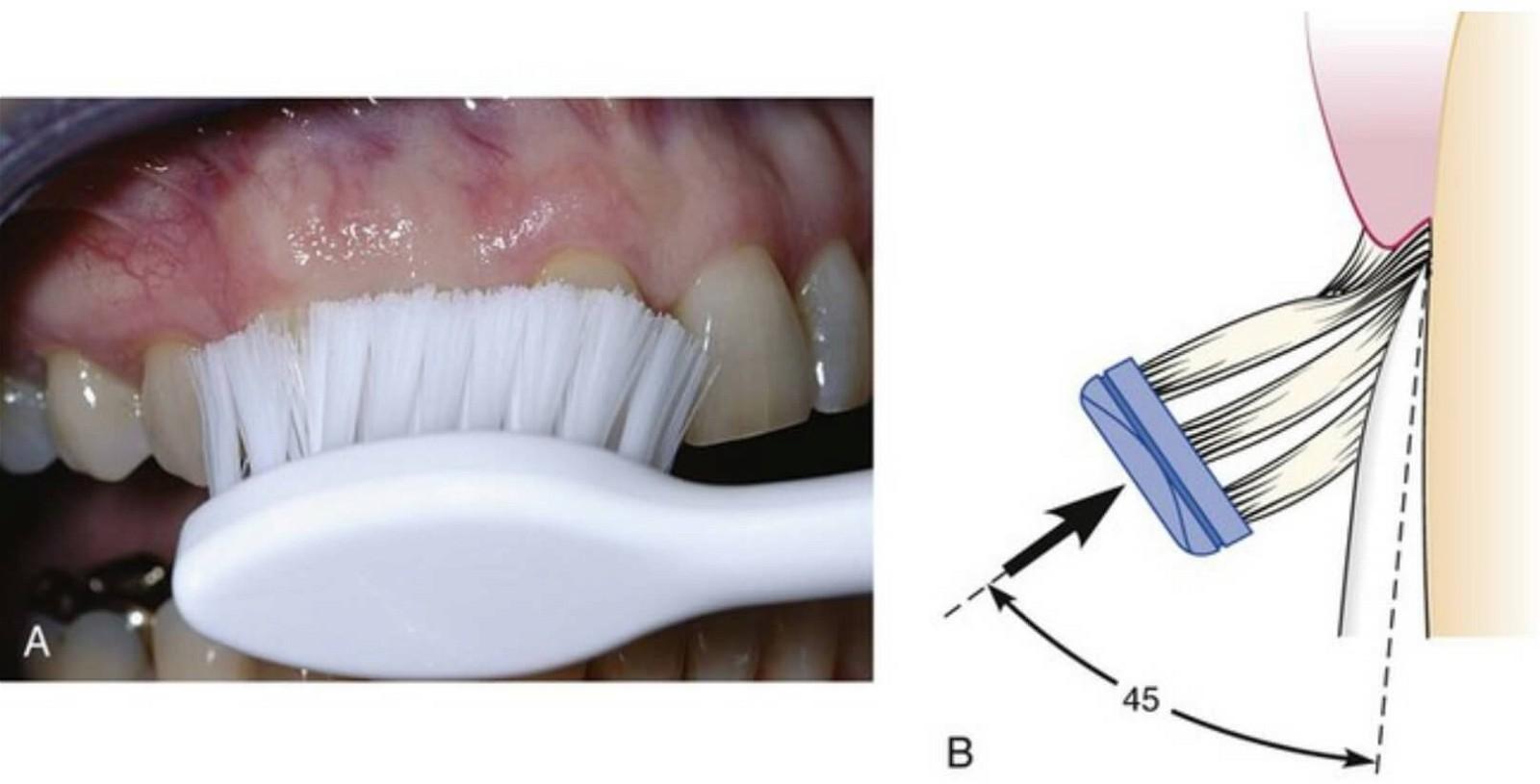 chải răng đúng cách phương pháp stillman