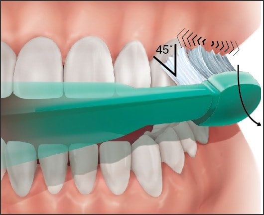 chải răng đúng cách phương pháp bass cải tiến