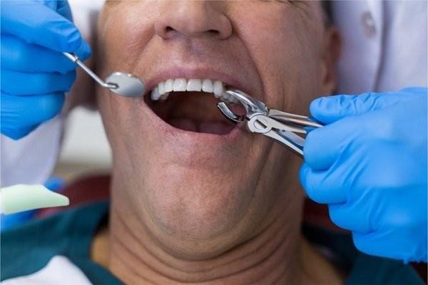Chăm sóc sau nhổ răng như thế nào để lành thương tốt ?