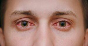 đỏ mắt