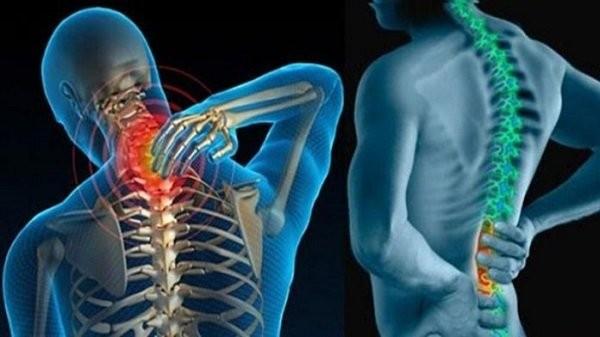 Gai xương có thể hình thành ở nhiều vị trí trên cột sống