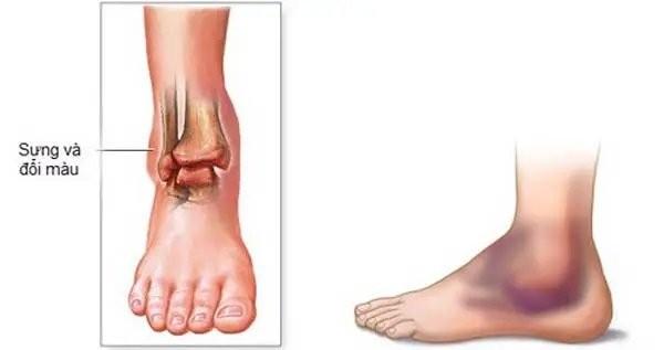 Vùng cổ chân đau dữ dội, sưng, bầm tím có thể là triệu chứng của gãy xương mắt cá chân