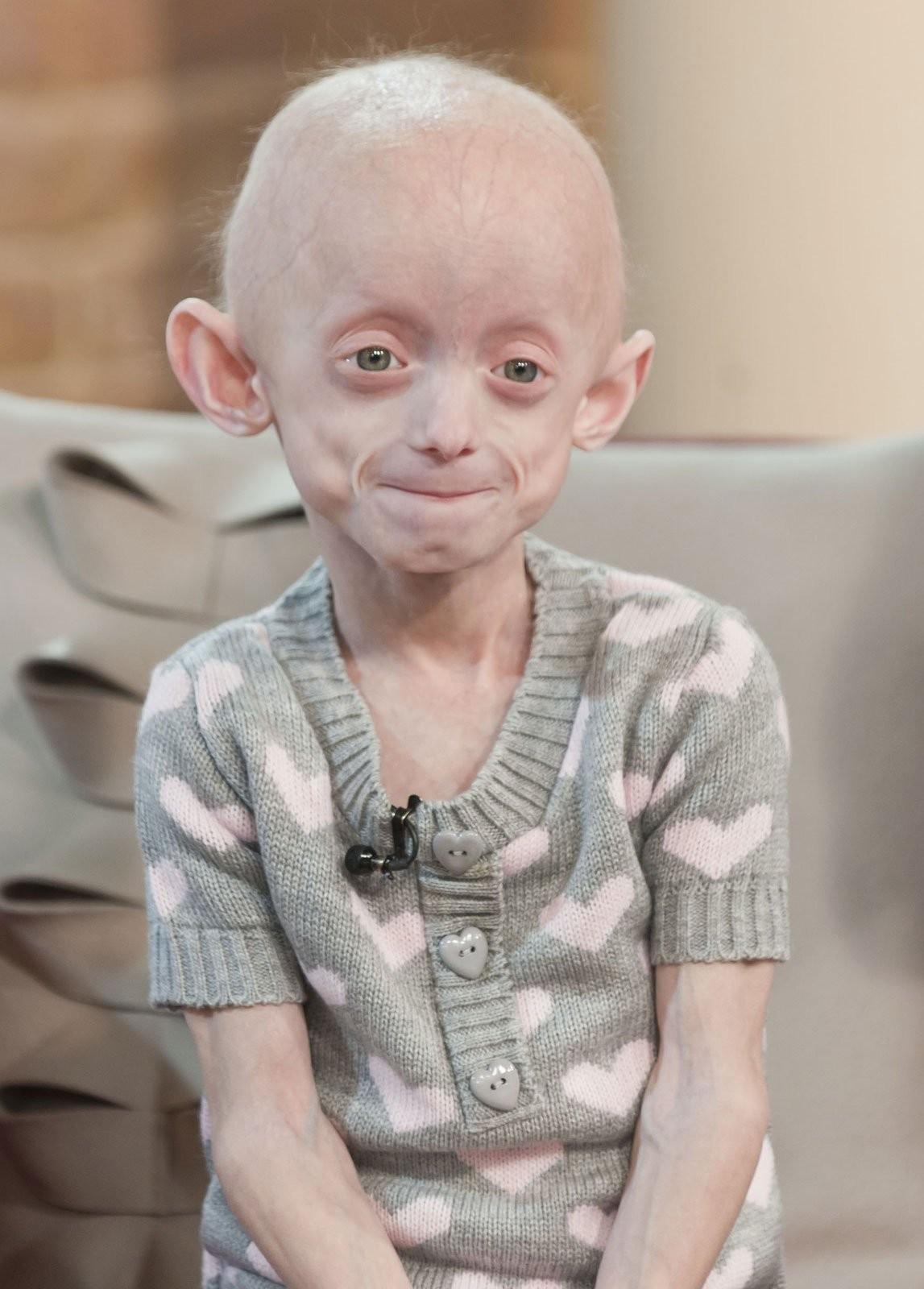 Hội chứng Progeria khiến trẻ già