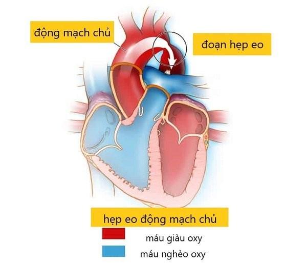 Hẹp eo động mạch chủ