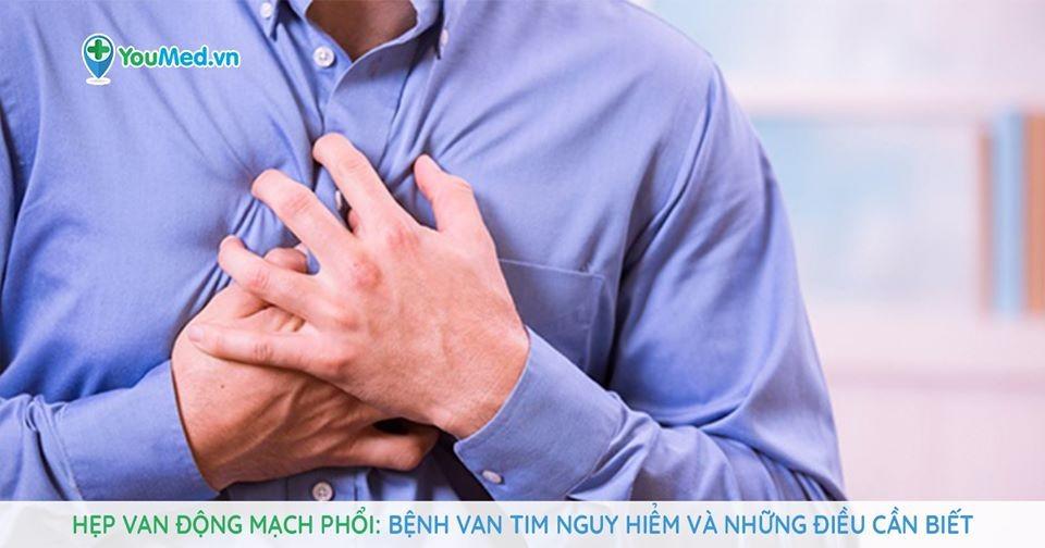 Hẹp van động mạch phổi: Bệnh van tim nguy hiểm và những điều cần biết