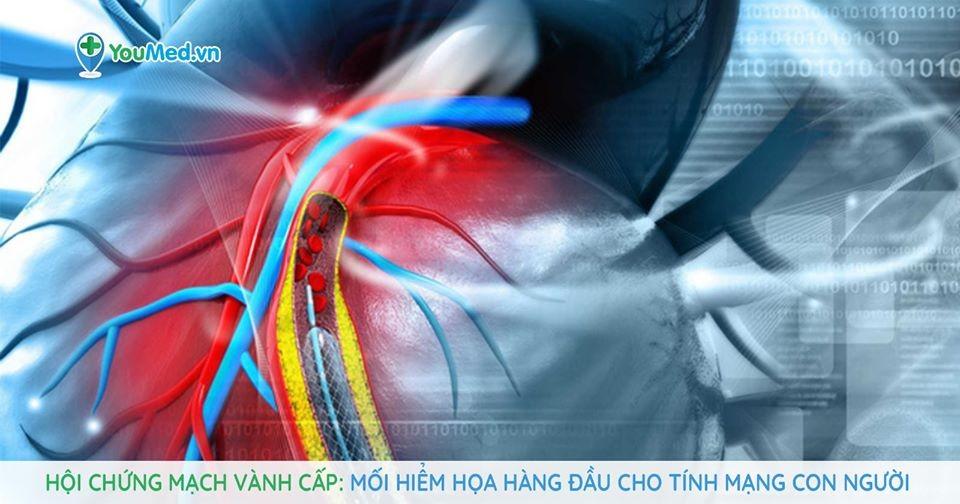 Hội chứng mạch vành cấp: Mối hiểm họa hàng đầu!