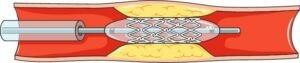can thiệp mạch vành