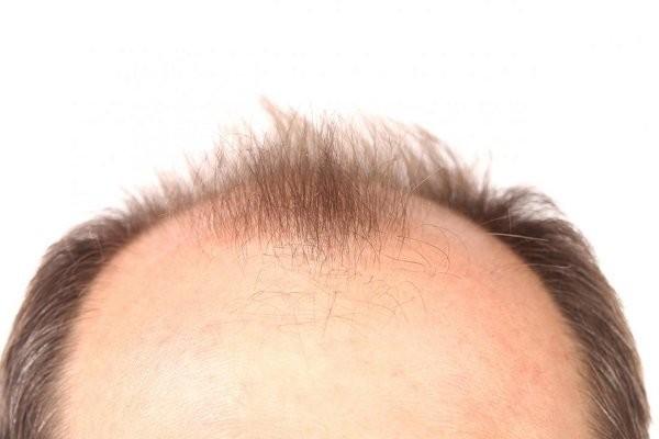 hói đầu
