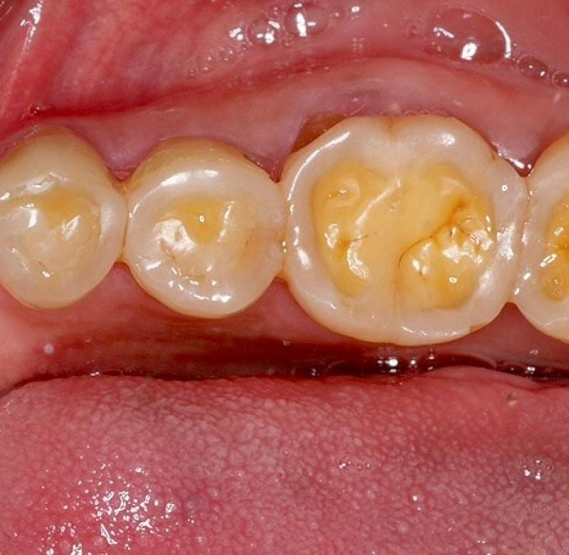 xoi mòn răng