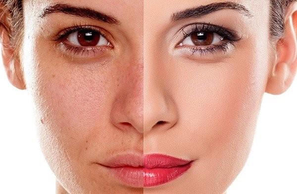 ảnh hưởng của stress lên da: sạm da