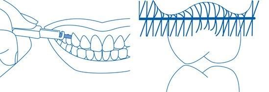 vệ sinh răng miệng bàn chải kẽ