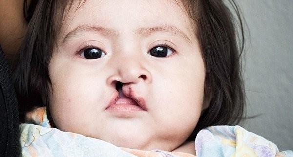 Dị tật khe hở môi vòm : Trẻ vẫn có cơ hội phát triển bình thường