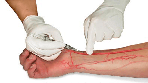 lấy khí máu động mạch đo độ bão hòa oxy