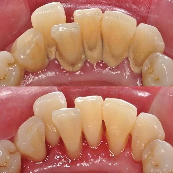 lấy vôi răng 2