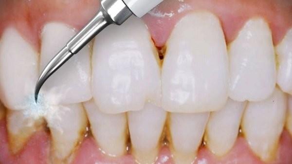 lấy vôi răng máy