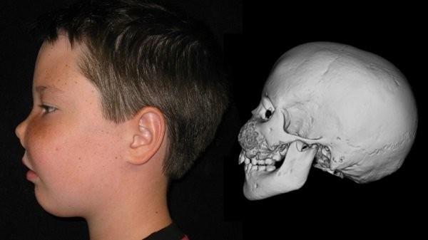 Biến dạng loạn sản xơ xương vùng sọ mặt
