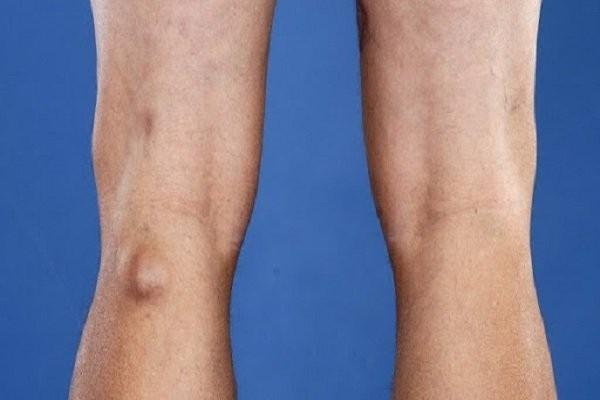 Nang hoạt dịch vùng khoeo chân không bao giờ ung thư hóa