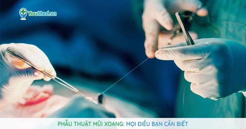 Phẫu thuật mũi xoang: Mọi điều bạn cần biết