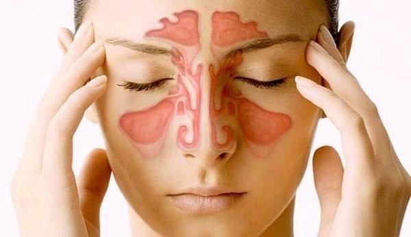 Viêm xoang là chỉ định phổ biến nhất của phẫu thuật mũi xoang