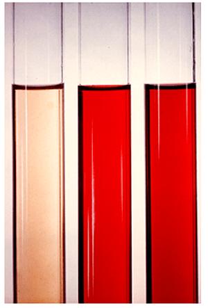 Màu sắc nước tiểu bất thường: Khi nào bạn cần đi khám bác sĩ?
