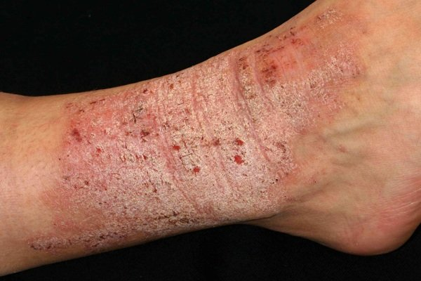 Rối loạn cào da (Dermatillomania)