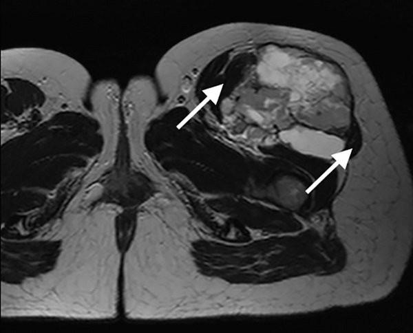 Hình ảnh sarcoma mô mềm trên phim chụp cộng hưởng từ (MRI)
