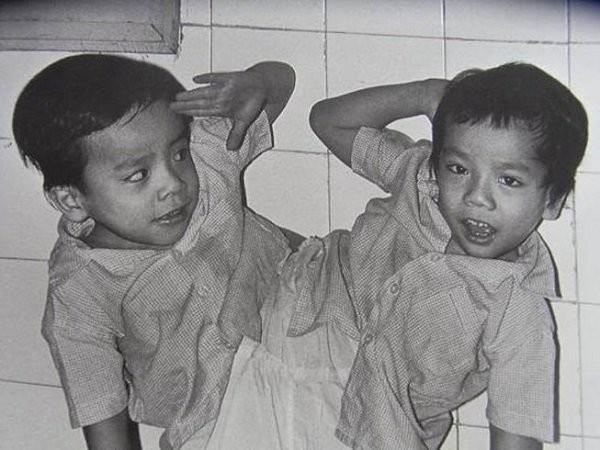 Cặp song sinh Việt-Đức