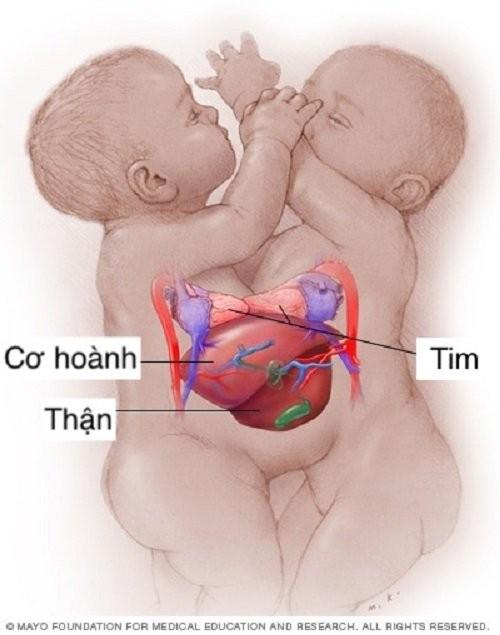 2 bé có chung cơ hoành và gan nhưng tim tách biệt