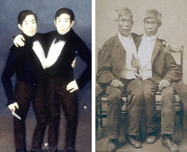 Cặp song sinh Chang và Eng