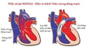 thân chung đại động mạch