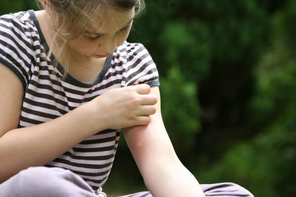 Vết muỗi đốt thường ở vị trí không được che bởi quần áo