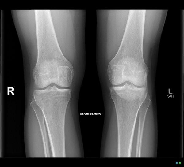 Chụp X-quang có thể loại trừ một số tổn thương có những triệu chứng giống với viêm bao hoạt dịch đầu gối