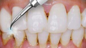 Cạo vôi răng bằng dụng cụ siêu âm
