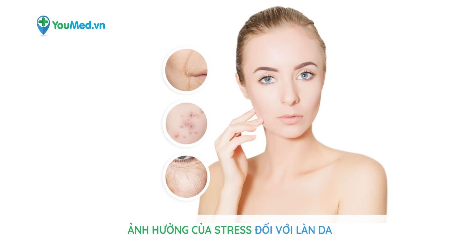 Ảnh hưởng của stress đối với làn da