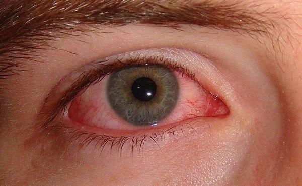 Viêm kết mạc là một trong những tác dụng phụ có thể gặp phải khi dùng thuốc Isotretinoin