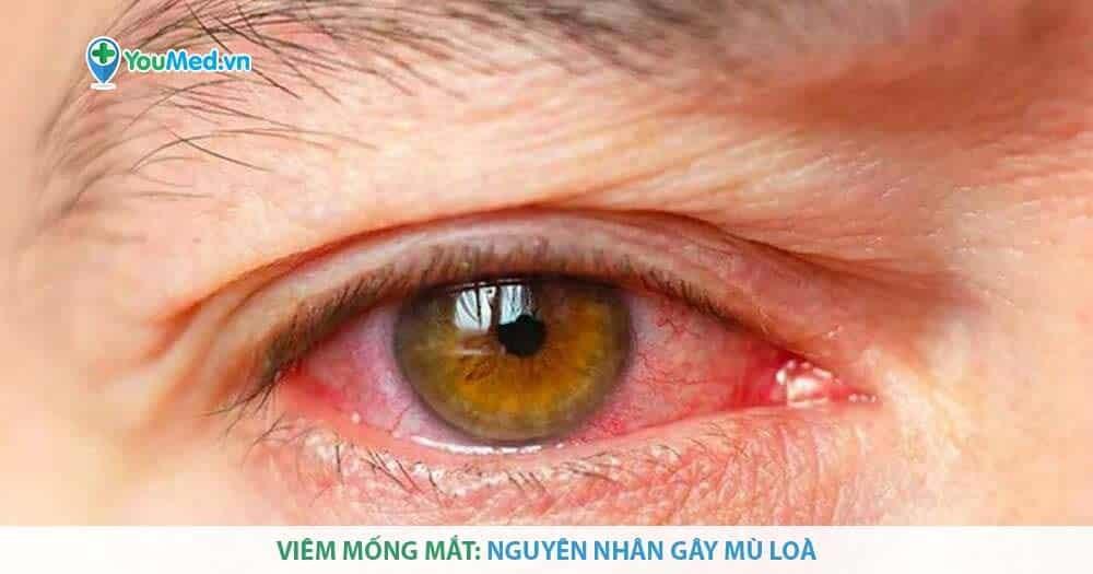 Viêm mống mắt: Nguyên nhân gây mù loà