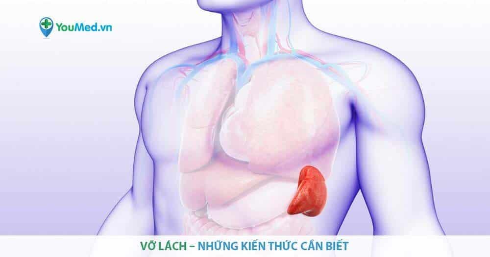 Vỡ lách – những kiến thức cần biết
