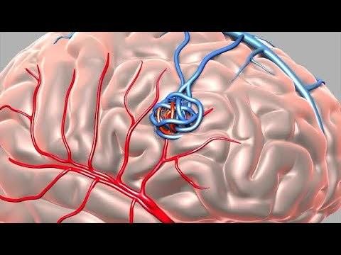 dị dạng động tĩnh mạch