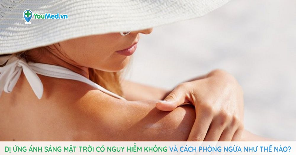 di-ung-anh-sang-mat-troi-co-nguy-hiem-khong-va-cach-phong-ngua-nhu-the-nao